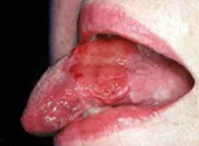 Beginning Signs Of Mouth Cancer