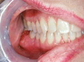 Oral Cancer Images – The Oral Cancer FoundationEarly Oral Cancer On Tongue Pictures